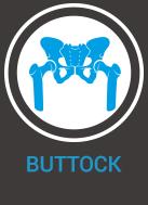 buttock injury - Ivybridge Physio and Rehab Treatment